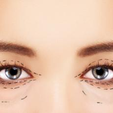 Eye Lid Correction